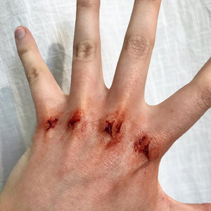 Beating victim with 3-days-old injuries