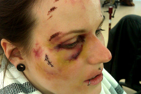 Injuries and scars with SFX Make-up and prosthetics by Make-up Artist Aisha King.
